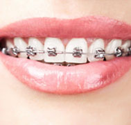 Self Ligating Braces (DAMON)